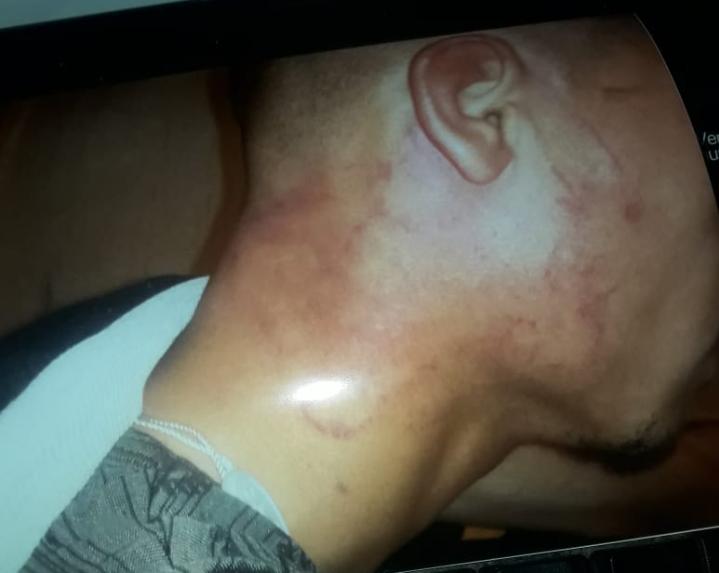طالب بزاكورة يتهم مجموعة من رجال الامن  بتعديبه وتعنيفه