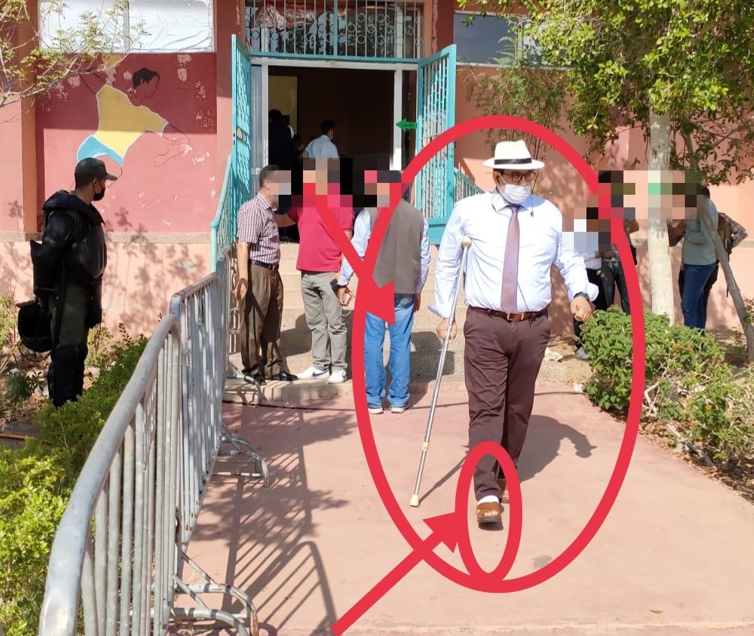 رغم اصابته بالكسر رئيس الشؤون الداخلية بولاية جهة مراكش حاضر في انتخاب رئيس جماعة تامنصورت